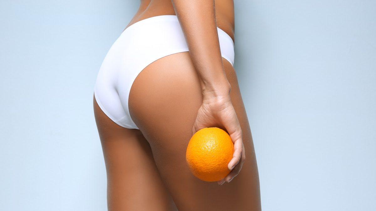5 consigli su come prevenire la cellulite