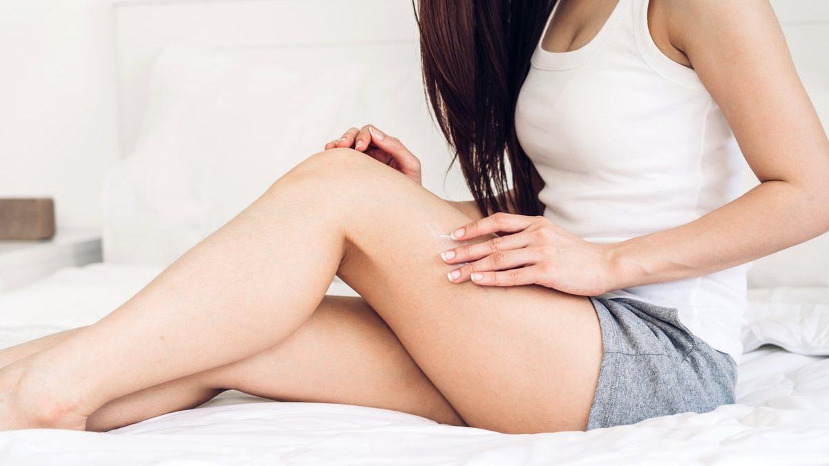 Come prevenire le vene varicose: i consigli da seguire